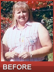 Before HCG Diet