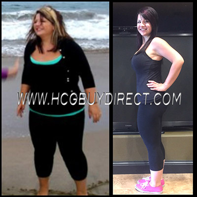 HCG Diet Drops Before & After